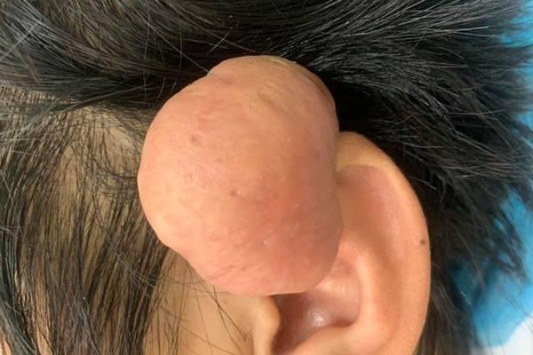 Quảng Nam: Phẫu thuật thành công khối u sụn vành tai lớn hiếm gặp cho bệnh nhân