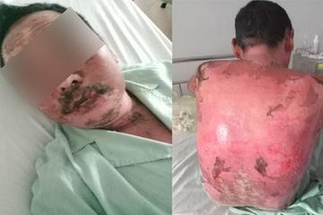 Dị ứng thuốc, nam bệnh nhân lở loét, trợt da khắp người