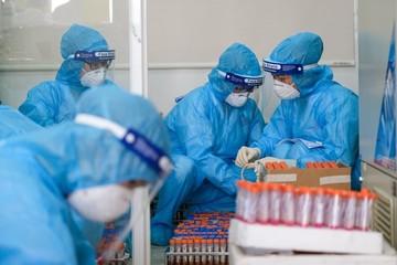 Xét nghiệm Covid-19 được bảo hiểm y tế chi trả bao nhiêu?