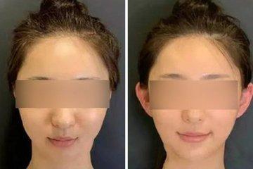 Giới trẻ Trung Quốc đổ xô đi phẫu thuật 'tai yêu tinh'
