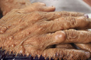Hàng nghìn khối u mọc chi chít như chùm sung trên người bệnh nhân