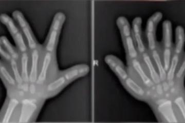 Kinh ngạc bé gái 4 tuổi có 14 ngón tay, 13 ngón chân