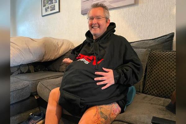 Choáng với hình ảnh người đàn ông mang trong người quả thận nặng 80 kg