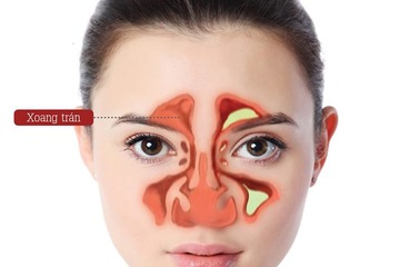 Viêm mũi xoang lan vào não dẫn đến tử vong: Bệnh lý không thể coi thường