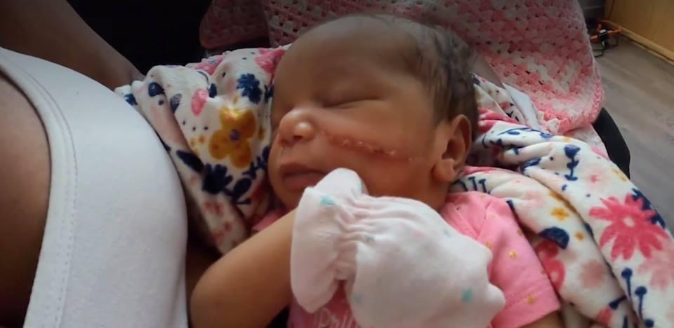Hi hữu: Em bé bị cắt ngang mặt khi sinh mổ đẻ ở Mỹ