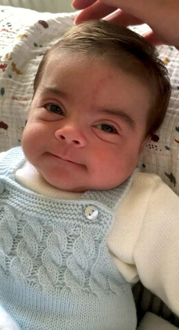Em bé sơ sinh sớm nổi tiếng vì ngoại hình khác thường