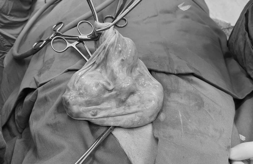 u nang buồng trứng,ung thư,u xơ tử cung,bệnh nhân,bác sĩ,bệnh phụ khoa