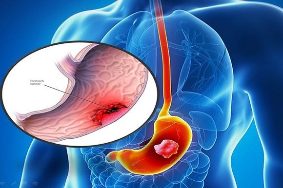 Ăn thường xuyên các loại thực phẩm này tăng nguy cơ ung thư dạ dày