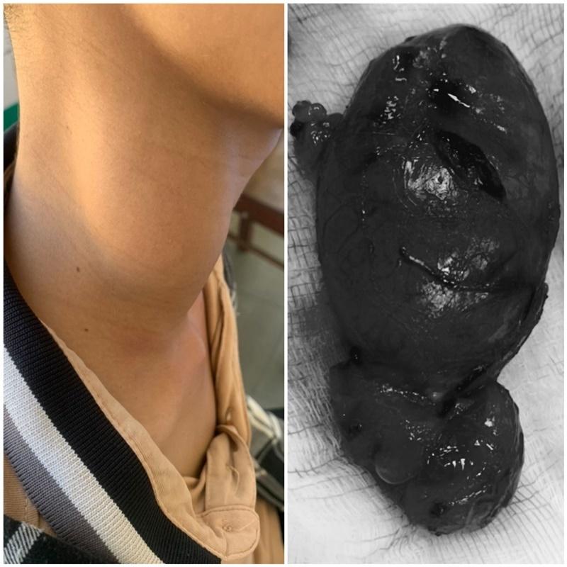Quảng Nam: Phẫu thuật lấy khối u lớn hiếm gặp ở vùng cổ bệnh nhân 13 tuổi