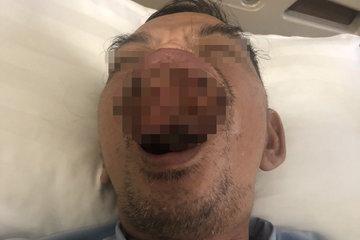Hai tháng trì hoãn điều trị vì dịch Covid-19, miệng người đàn ông biến dạng sùi loét, hoại tử