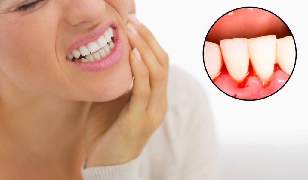 Chảy máu chân răng là dấu hiệu của bệnh ung thư nào?