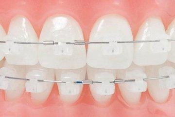 Quảng Nam: Bé gái nhập viện vì mảnh kim loại niềng răng rơi vào họng