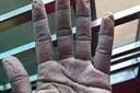 Cách chăm sóc da tay khi đeo găng tay y tế nhiều giờ