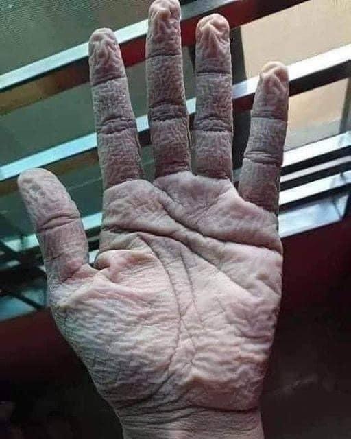 cấp cứu,kem dưỡng da,găng tay