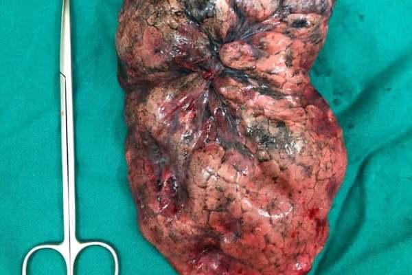 Hút thuốc lá nhiều năm, người đàn ông Tuyên Quang mắc ung thư phổi