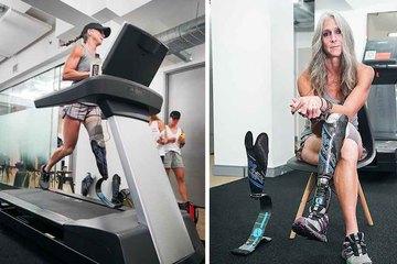 Người phụ nữ cụt 1 chân trải qua 25 lần phẫu thuật, lập kỷ lục thế giới chạy 160 km trên máy
