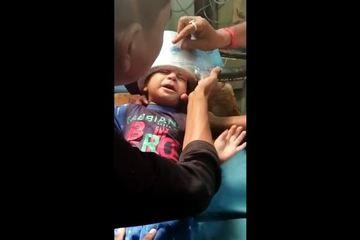 Bác sĩ 'toát mồ hôi' giải cứu cậu bé bị kẹt đầu trong nồi áp suất