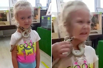 Thăm quan sở thú, cô bé 5 tuổi bất ngờ bị rắn cắn vào mặt