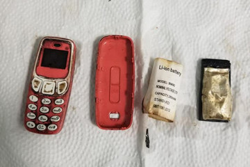 Sốc khi phát hiện điện thoại 'cục gạch' trong bụng người đàn ông