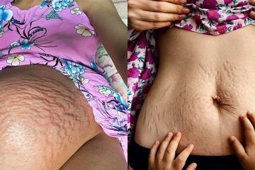 Chị em theo trend khoe bụng rạn nhão, xấu xí vì mang thai cùng Hòa Minzy