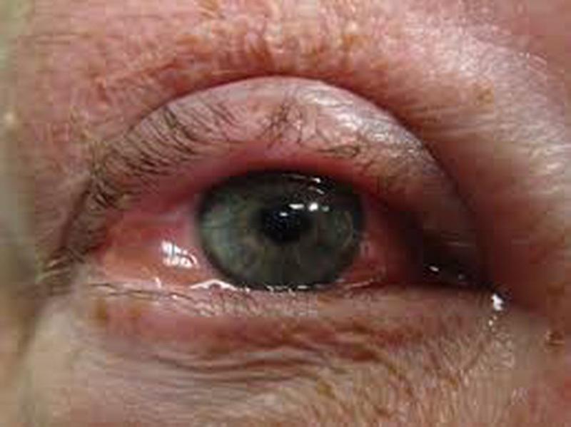 Ngỡ mờ mắt do tuổi tác ai ngờ mắc căn bệnh thế kỷ