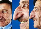 Dị nhân mũi siêu to phiên bản đời thực phá vỡ mọi quy luật bình thường