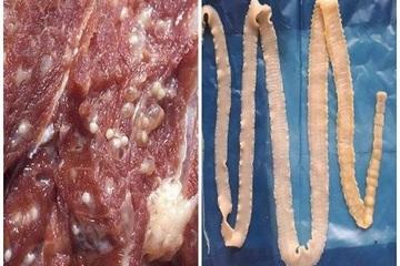 55 tỉnh, thành có trường hợp bệnh sán dây, ấu trùng sán lợn, Bộ Y tế khuyến cáo cách phòng