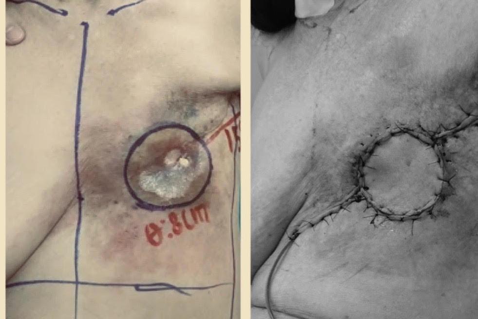 Sau 20 năm điều trị ung thư vú, bệnh nhân 76 tuổi loét ngực, chảy dịch bốc mùi hôi