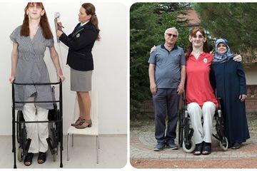 Cuộc sống khó khăn của người phụ nữ 24 tuổi cao nhất thế giới