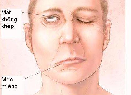 Hoảng hốt khi ngủ dậy phát hiện miệng méo, lệch mặt, nguyên nhân nhiều người mắc
