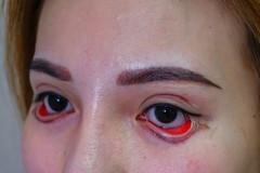 Mất 25 triệu, cô gái đau đớn, mất việc vì 'đôi mắt quỷ đỏ'