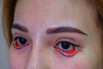 Mất 25 triệu, cô gái đau đớn cả tháng, mất việc vì mắt thường thành 'đôi mắt quỷ đỏ'